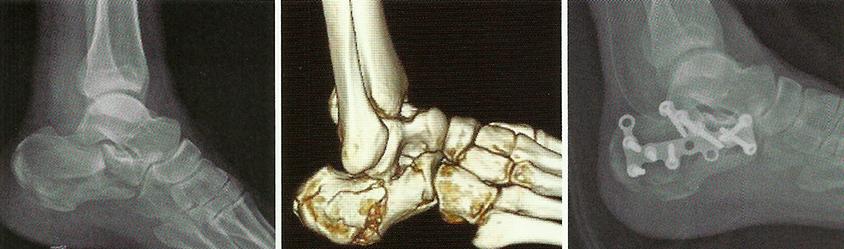 Реабилитация после перелома пяточной кости в домашних условиях