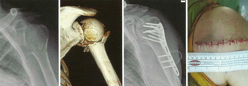 Фото плечевая кость перелома